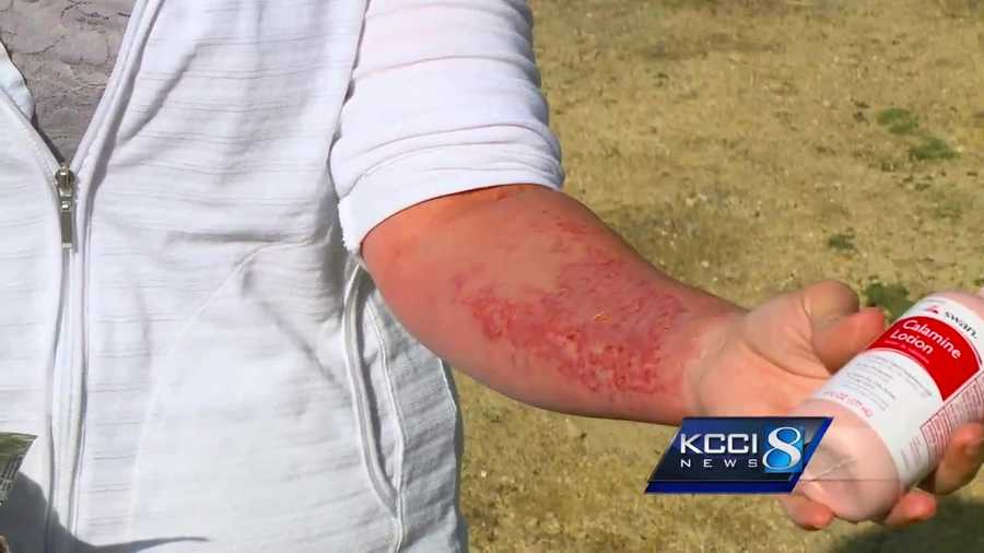 KCCI first reported the DNR's warning about wild parsnip Tuesday.