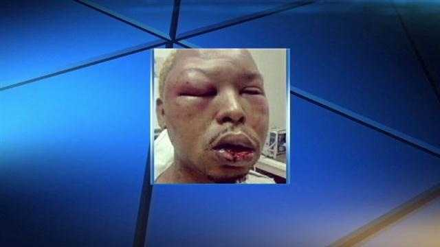 Kenneth Shaw was beaten in a brutal attack on Christmas Day.