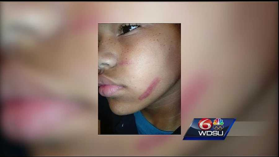 A parent at Sylvanie Williams College Prep Charter School is upset after his child came home from school with bruises last month. The injuries were not at the hands of another student but rather a coach at the school. Now this family wants answers.