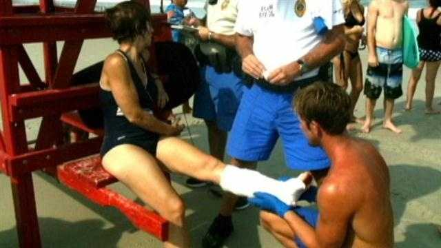 A local woman nurses a bloody, mangled leg after tangling with a shark.