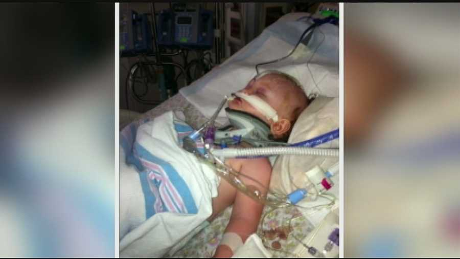 The 15-month-old's grandparents said she will undergo another surgery Monday to relieve pressure on her brain.